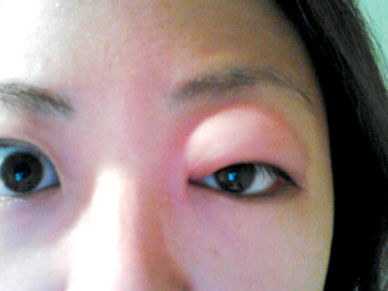 Allergies swollen eye